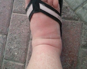 fat foot cankle