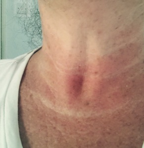White lines along tanned neck
